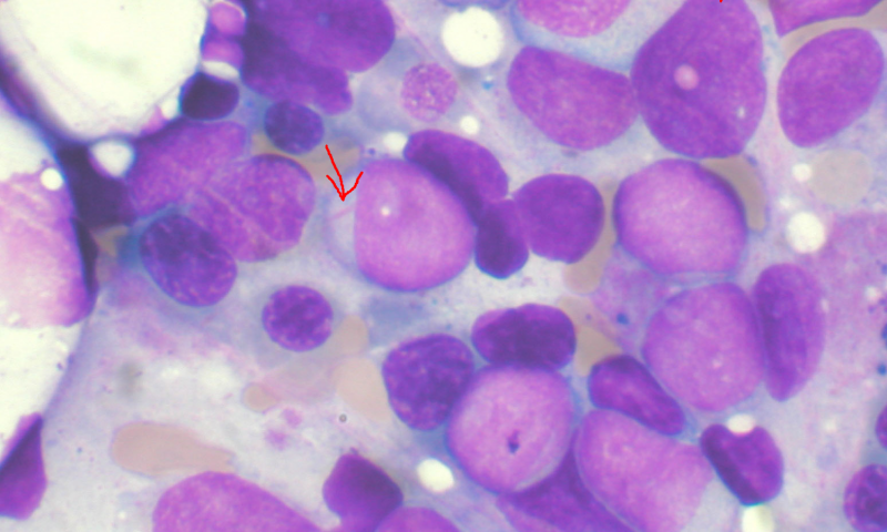 Study leads to breakthrough in better understanding acute myeloid leukemia